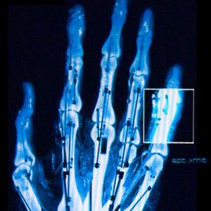 Proteze bionice